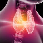 Hashimoto – objawy, dieta, w ciąży